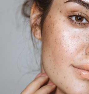 آموزش مراقبت از پوست در خانه